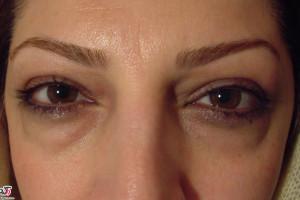 علت پف پلک چشم چیست؟+ ویدئو