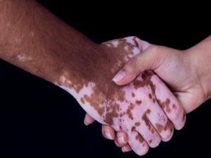 حکم ازدواج با کسی که بیماری پیسی دارد و نگفته است!