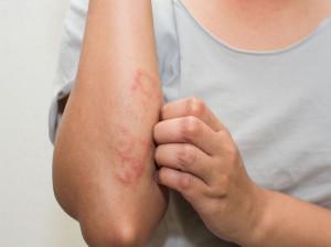 درماتیت آتوپیک : علل، نشانه ها، روش های تشخیص و روش های درمان