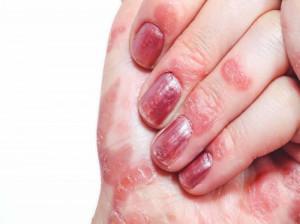 همه چیز درباره اگزمای پوست دست خانم ها