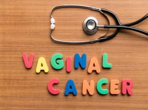 سرطان واژن : علائم و درمان سرطان دهانه واژن
