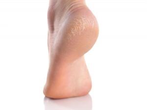 ۱۱ درمان خانگی ترک های پوستی (استرچ مارک)