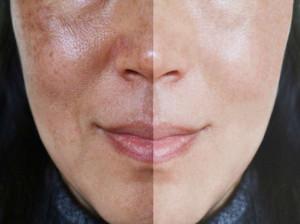 درمان های خانگی و موثر در درمان منافذ باز پوست