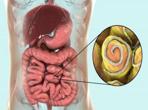 راه های پیشگیری از ورود کرمک یا انگل به بدن چیست ؟