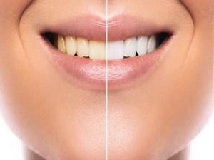 ۱۲ درمان های خانگی برای از بین بردن لکه دندان