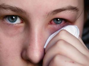التهاب چشم : ۱۱ راهکار خانگی برای درمان عفونت چشم