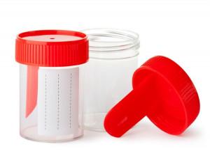 Yeast در آزمایش مدفوع : علائم وجود Yeast (مخمر) در مدفوع چیست ؟