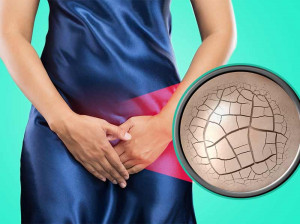 ۱۰ علت اصلی خشکی واژن هنگام دخول + ۷ درمان قطعی این عارضه