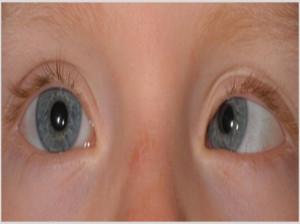 استرابیسم (انحراف چشم) و بهترین نحوه درمان این عارضه