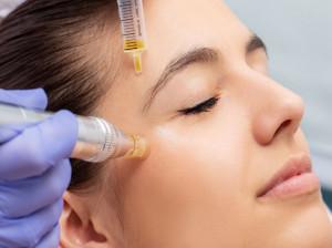میکرونیدلینگ روشی برای جوانسازی پوست