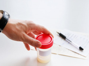 آنالیز مایع منی یا آزمایش اسپرم چیست؟