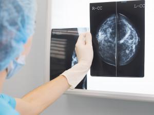 تفاوت و مقایسه ماموگرافی و ترموگرافی جهت تشخیص سرطان سینه