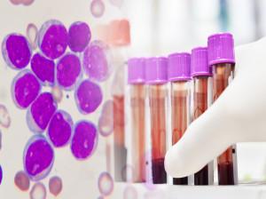 تفاوتهای عمده بین سرطان خون و لنفوم