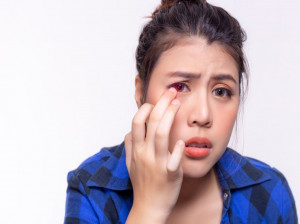 دلیل ایجاد عارضه کموسیس چشمی چیست ؟