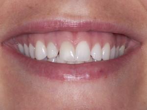 لبخند لثه ای چیست ؟ آیا قابل درمان است ؟