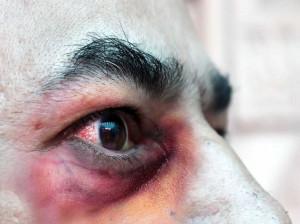 علائم قارچ سیاه (موکورمایکوزیس) : بیماری که باعث نابینایی و مرگ می شود