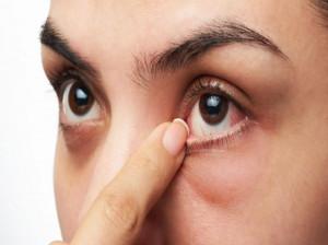 بررسی ۱۲ علت اصلی خارش گوشه چشم + درمان