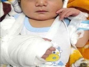 تولد نوزاد خرمشهری با دست شکسته!