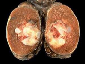 سرطان بیضه چیست؟