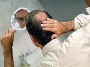 ژنتیک شایع ترین علت ریزش موی سر آقایان