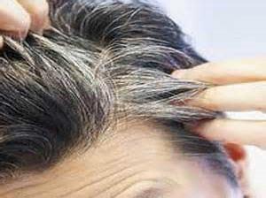 چرا موهایمان زود سفید می شود؟