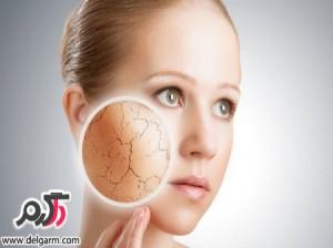 نکات مهم مرتبط با پوست های خشک