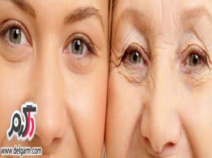 بهترین درمان ها برای چین و چروک اطراف چشم کاملترین مقاله