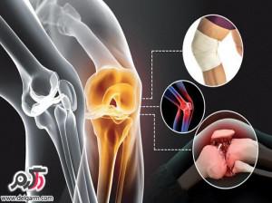 درمان درد آرتروز زانو و زانو درد کاملترین مقاله +فیلم