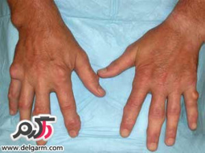 روماتیسم مفصلی(Rheumatoid arthritis) چیست؟ و درمان روماتیسم آن به چه روشی انجام میشود؟