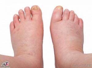 دلایل ورم و تورم پا چیست؟