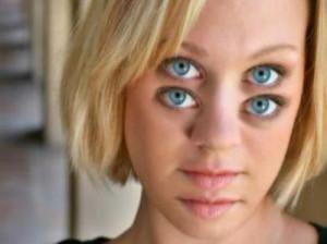 چرا دچار سرگیجه میشویم؟سیاهی رفتن چشم  خود را چگونه درمان کنیم؟