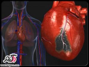 بیماری ناراحتی قلبی و علائم آن