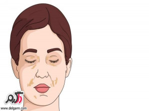 علت تورم صورت چیست؟