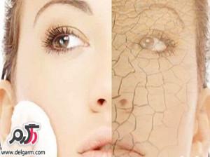 بهترین درمان ترک پوست در طب سنتی