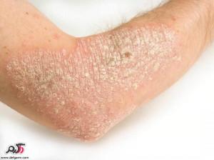 درمان خانگی عارضه پوستی پسوریازیس