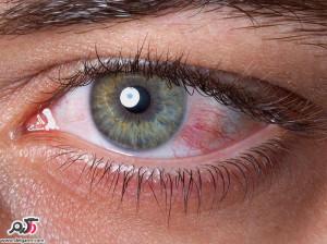 علت سوزش چشم