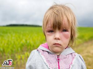 علت؛علائم و درمان بیماری آنافیلاکسی( بیشدفاعی)