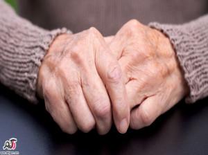 علائم و درمان بیماری «اسکلرودرمی» بیماری پیشرونده روماتیسمی