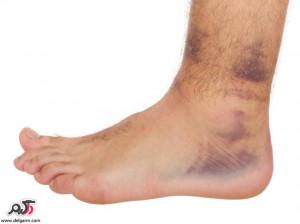 علت و درمان لخته خون در وریدهای عمقی (بیماری DVT)