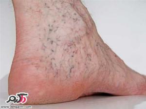 درمان رگ های بنفش، آبی و قرمز واریس پا چیست؟