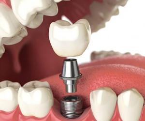 جراحی ایمپلنت و۷ نکته درباره کاشت دندان که باید بدانید