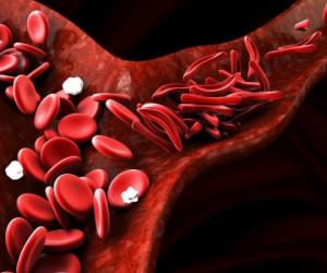 علائم کم خونی داسی شکل چیست و چگونه درمان میشود ؟
