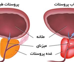 التهاب پروستات چیست ؟ آیا التهاب پروستات درمان میشود ؟