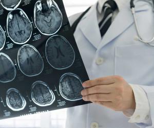 تفاوت جراح مغز و اعصاب و نورولوژیست چیه؟