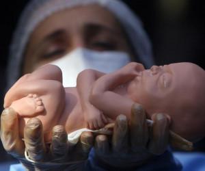جزئیات طرح جدید مجلس در مورد سقط جنین