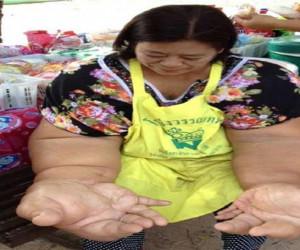 بیماری عجیب زنی که بزرگترین دست های جهان را دارد