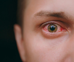 التهاب قرنیه یا کراتیت چیست   علل و درمان آن کدام است ؟