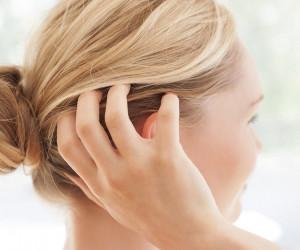 خشکی پوست سر چیست و چه علتی دارد ؟