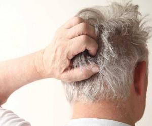 5 روش معجزه آسا برای درمان خشکی پوست سر
