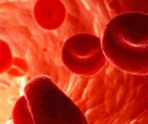 کم خونی فقر آهن تکامل کودک را مختل می کند